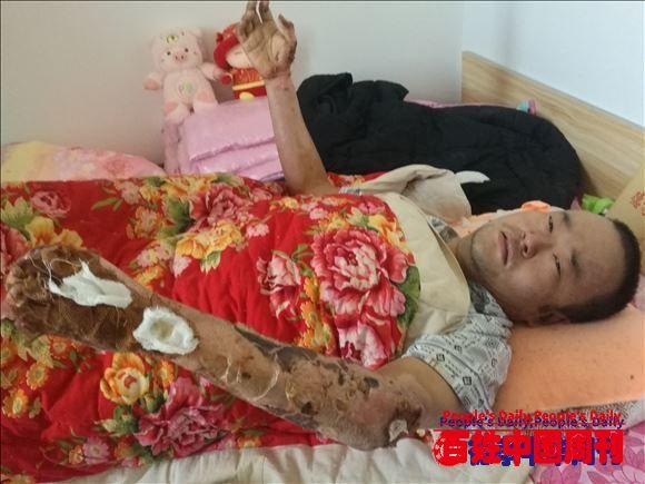 凯发注册中华书画院河北沧州分院书画家义卖作品救助烧伤患者获称赞